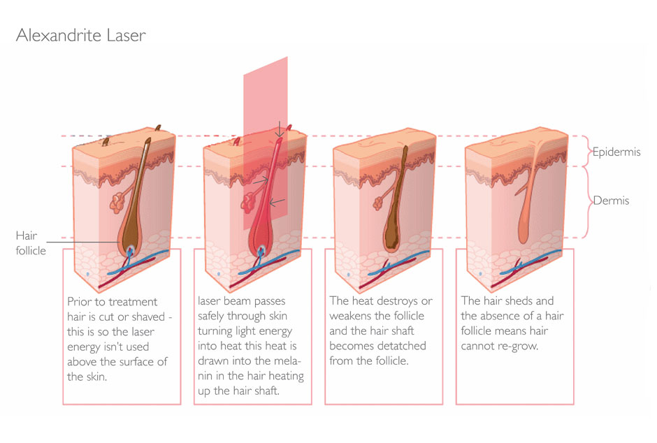 The Truth About Home Laser Ipl Hair