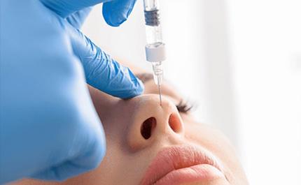 5 Point Face Lift - Parfaire Clinic